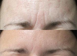 Botox-Behandlung Vorher-Nacher
