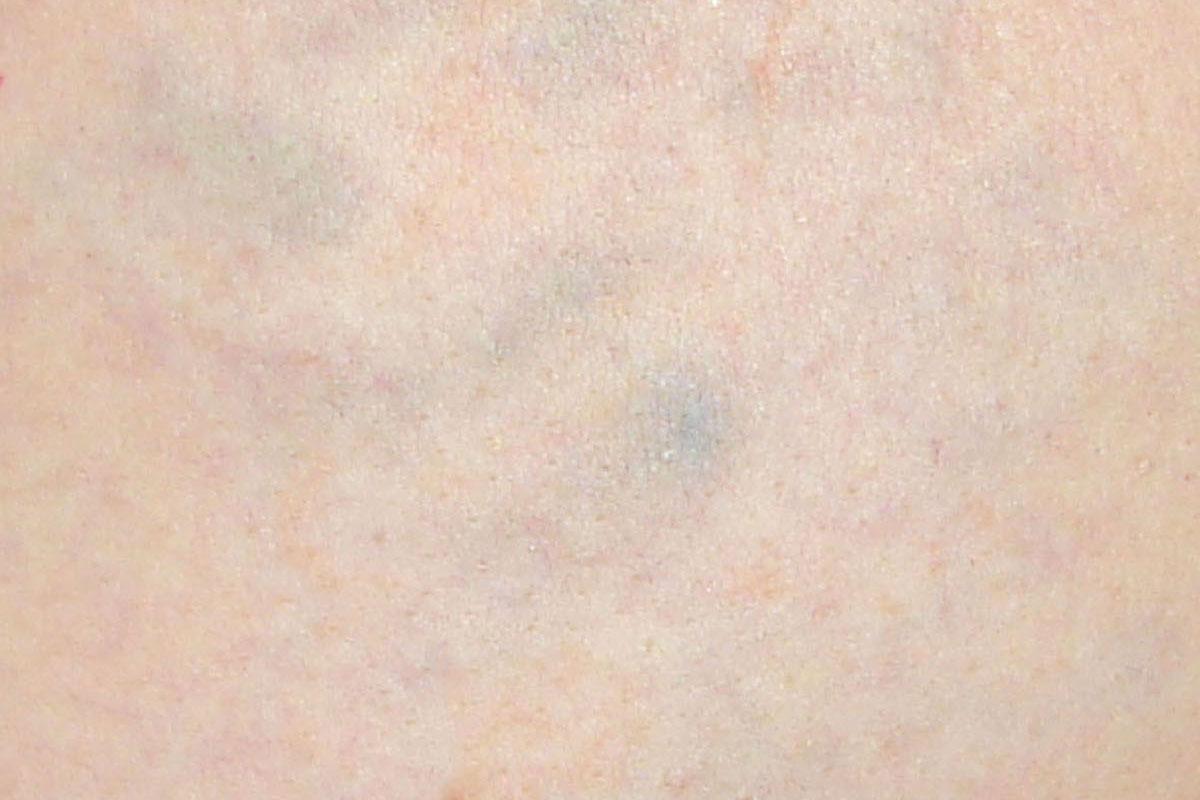 Tattooentfernung eines bunten Tattoos nach 13 Behandlungen