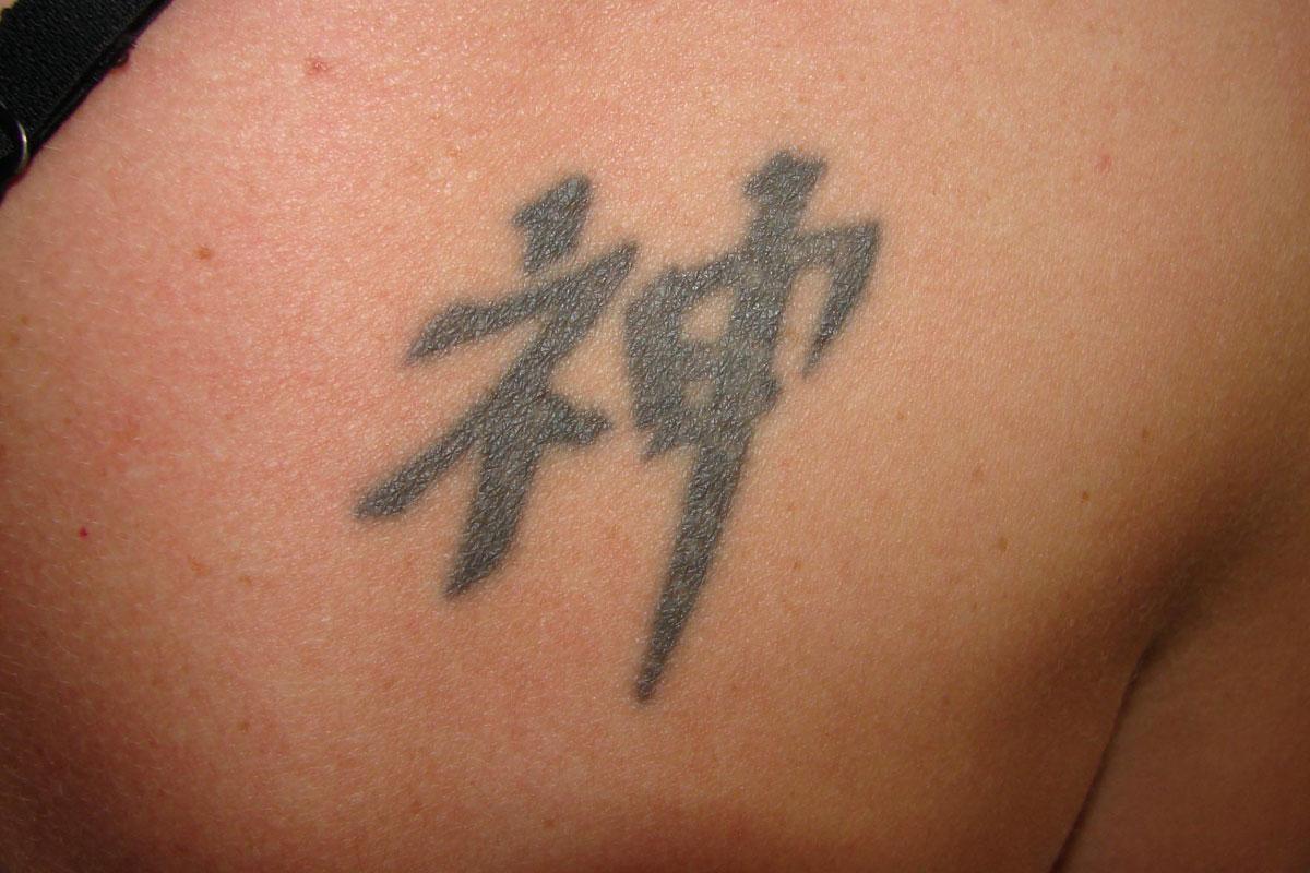 Schulter-Tattoo vor der Behandlung