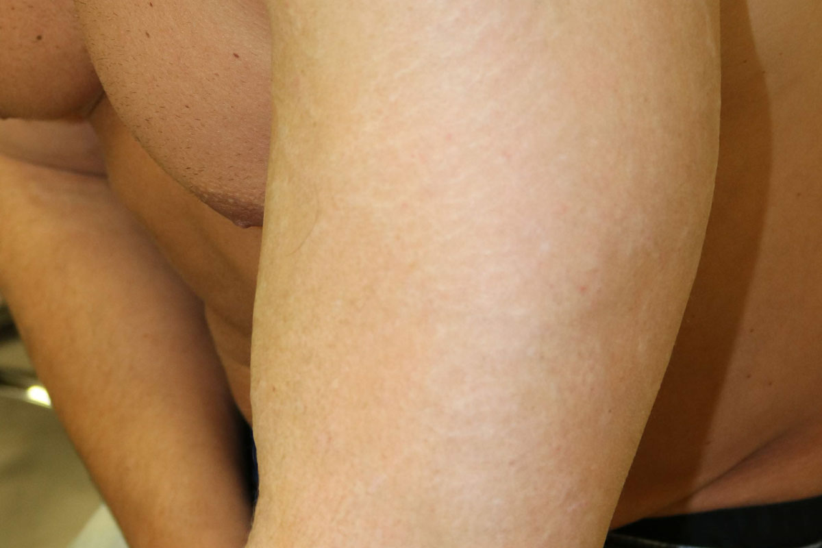 Tattooentfernung am Arm nach der 20. Behandlung