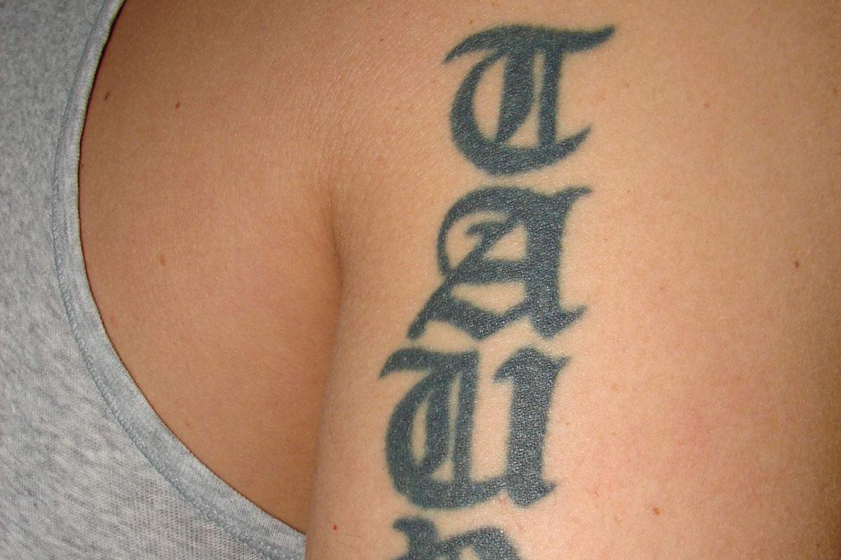Tattooentfernung am Oberarm vor der Behandlung