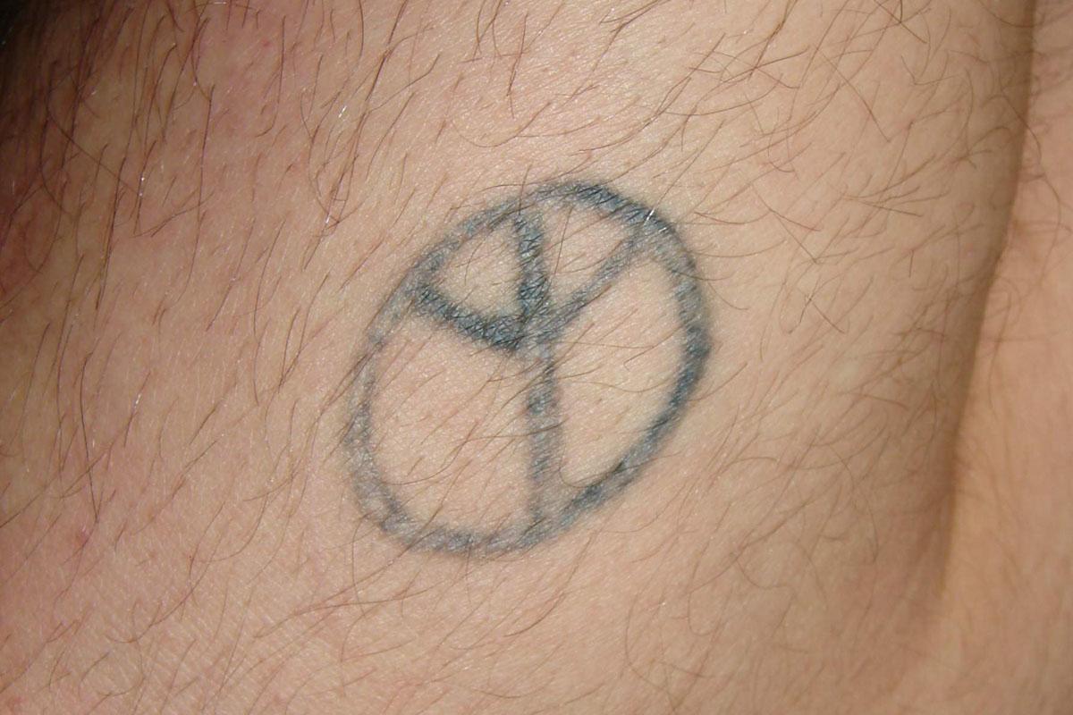 Tattooentfernung am Unterarm vor der Behandlung