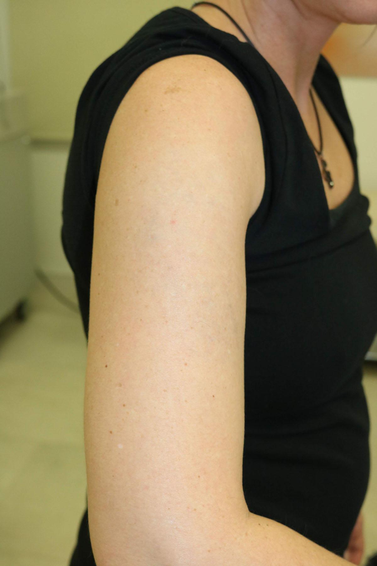 Tattooentfernung am Oberarm nach der 6. Behandlung