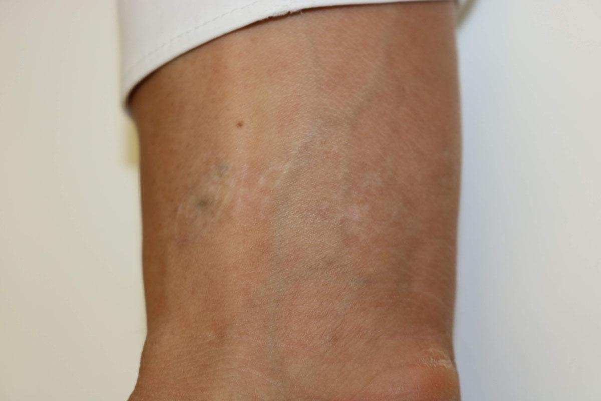 Tattooentfernung am Handgelenk nach 15 Behandlungen