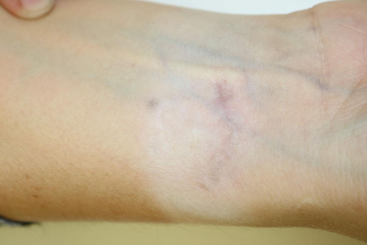 Tattooentfernung am Unterarm nach 14 Behandlungen