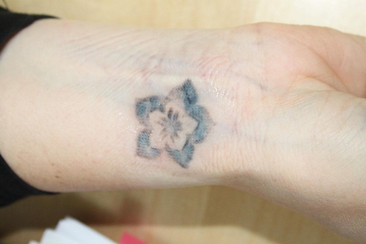 Tattooentfernung am Unterarm nach 3 Behandlungen