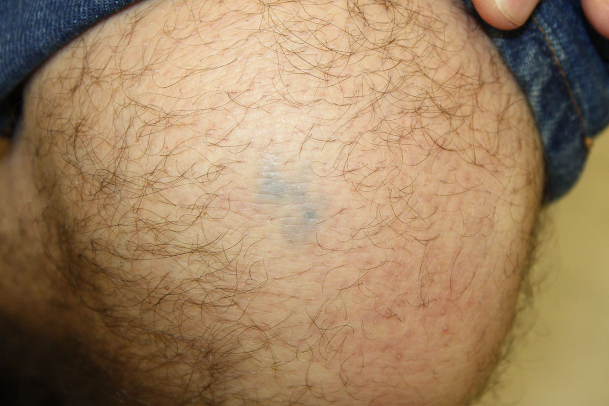 Tattooentfernung am Knie nach 4 Behandlungen