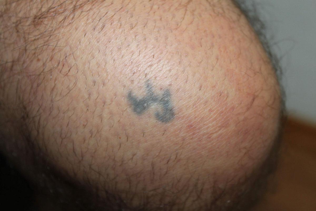 Tattooentfernung am Knie vor der Behandlung