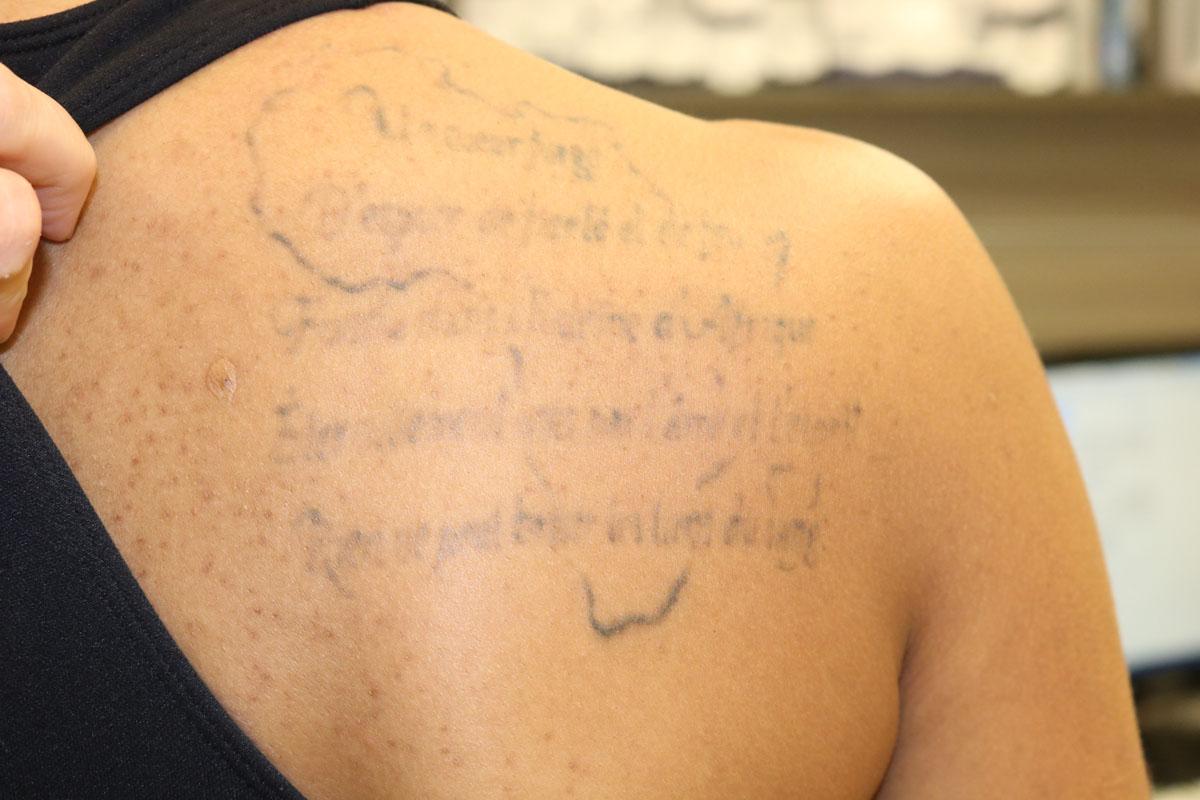 Tattooentfernung auf der Schulter nach 3 Behandlungen