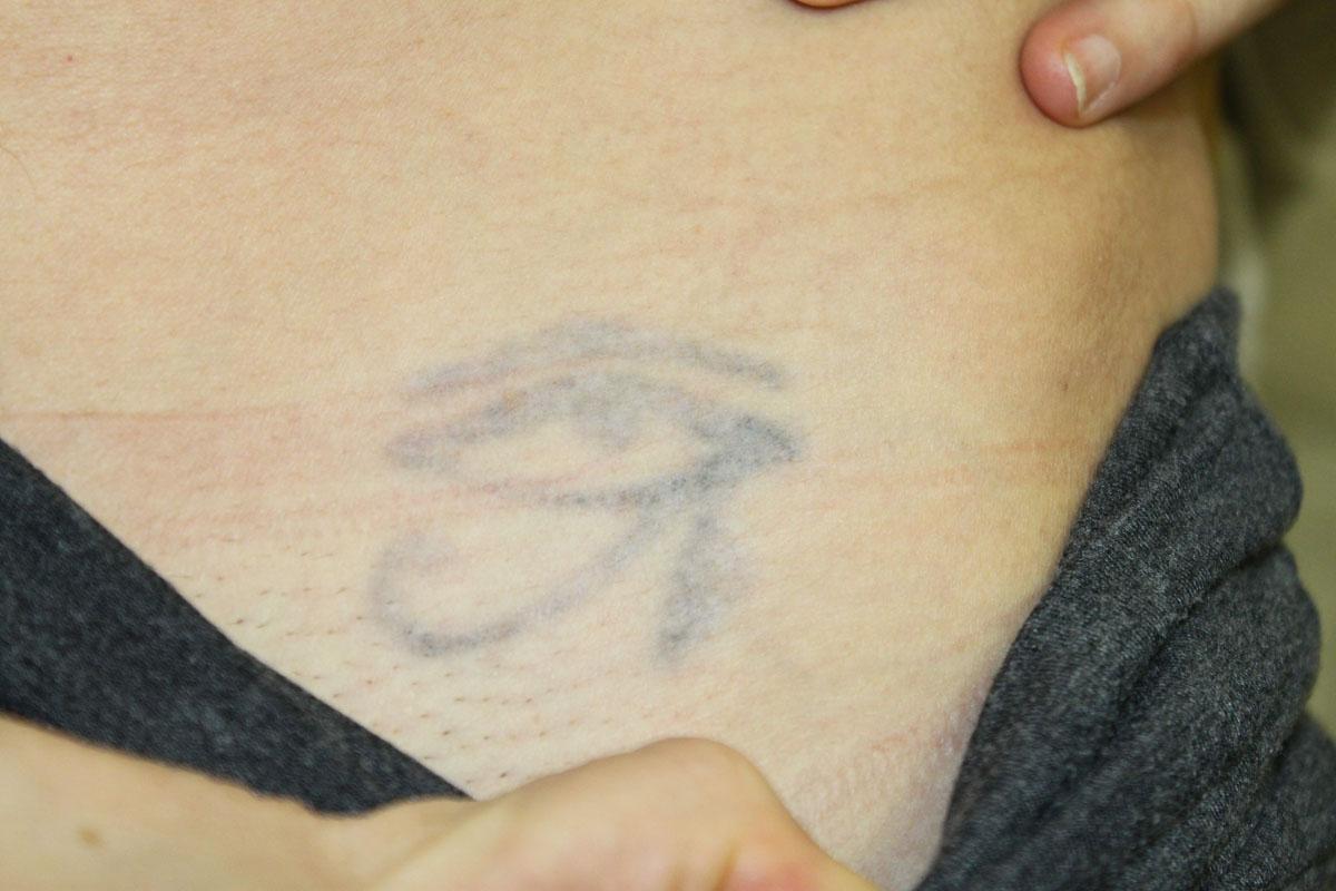 Tattooentfernung auf der Leiste nach 5 Behandlungen