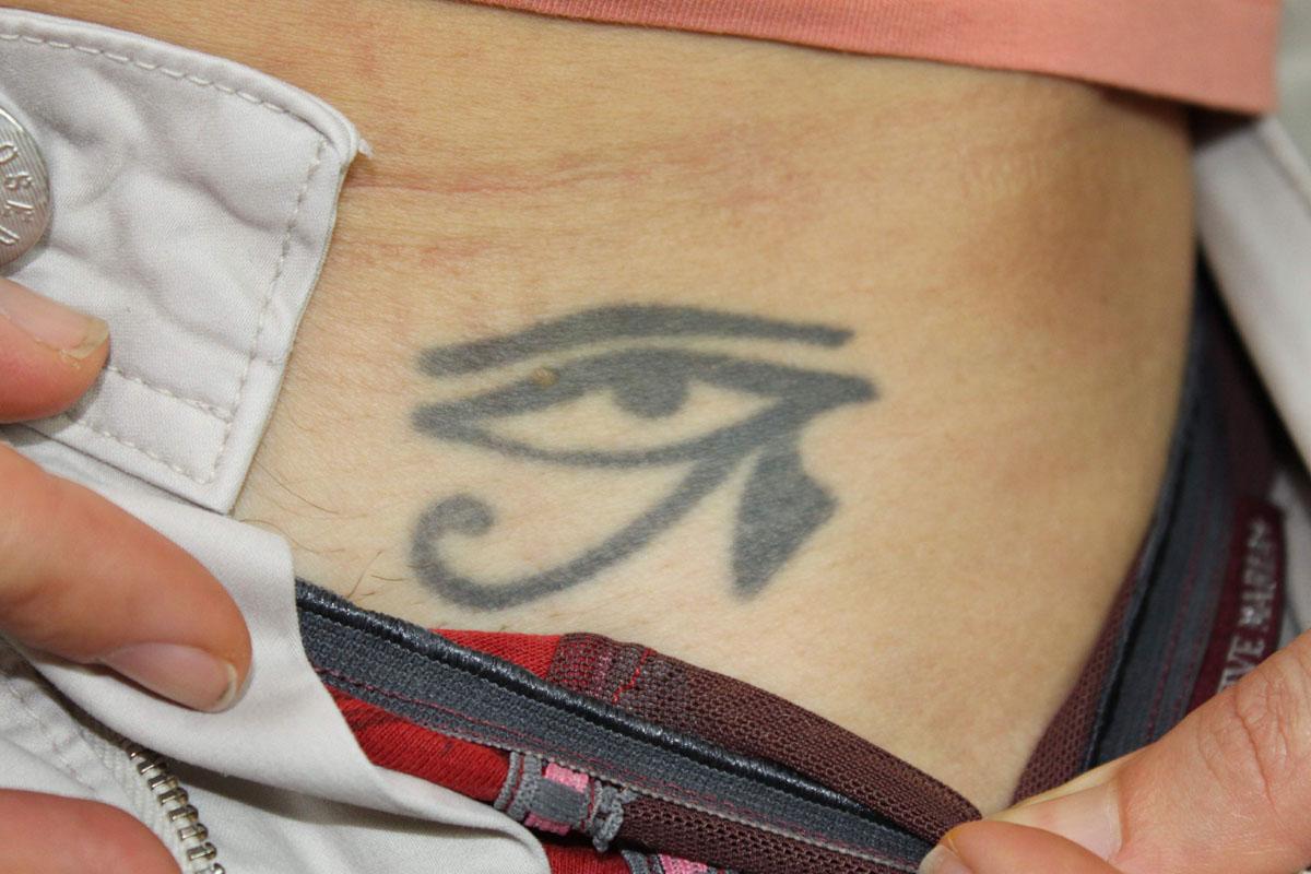 Tattooentfernung auf der Leiste vor der Behandlung
