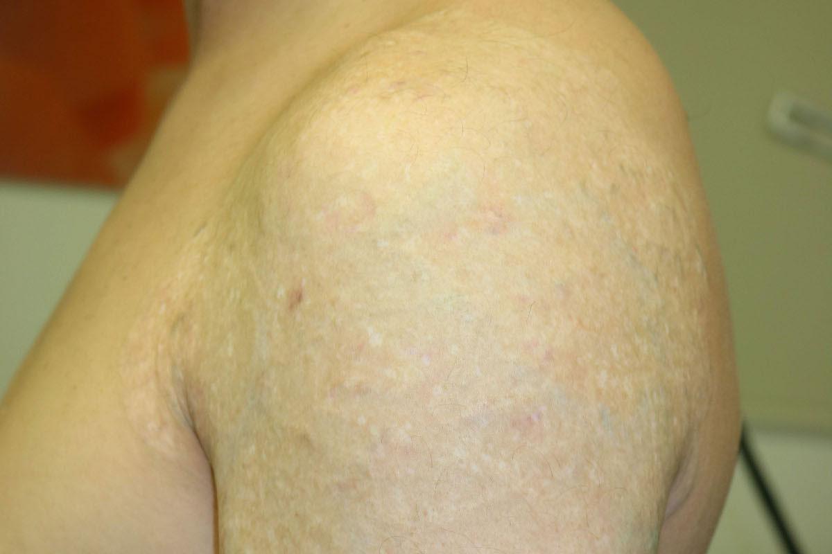Tattooentfernung eines bunten Tattoos am Oberarm nach über 30 Behandlungen
