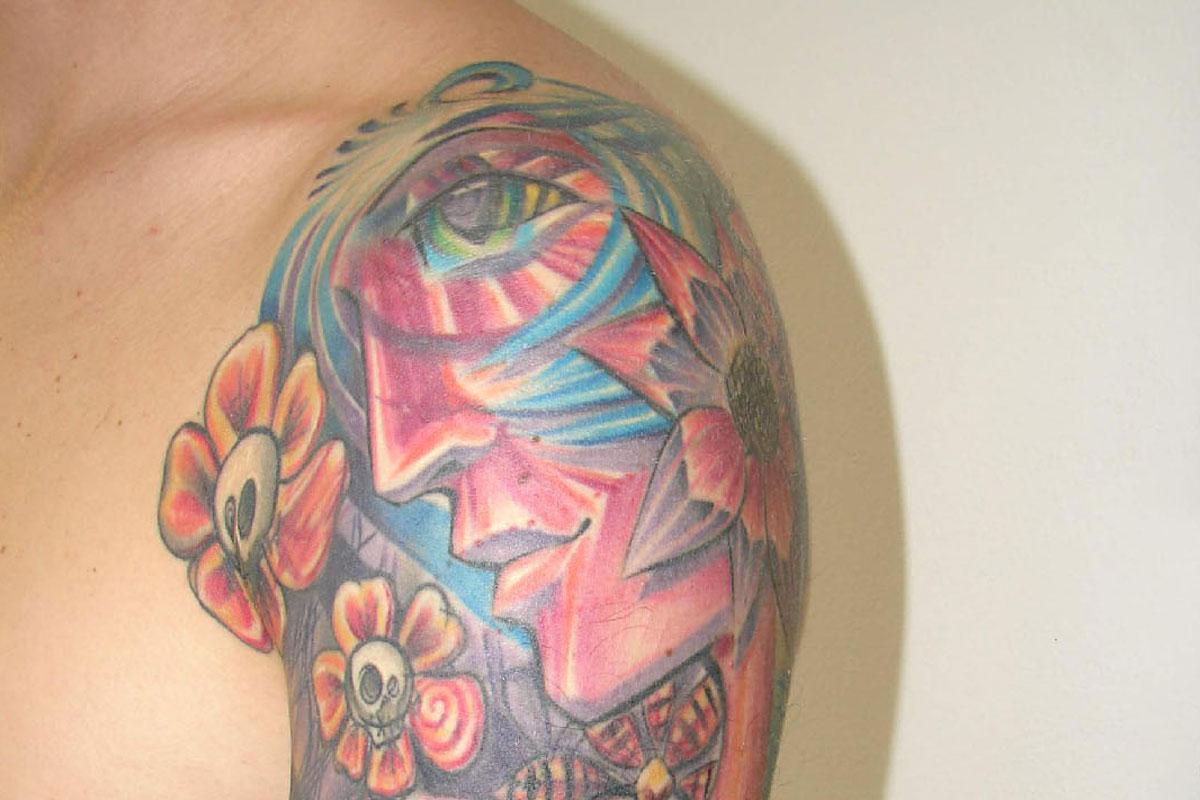 Tattooentfernung eines bunten Tattoos am Oberarm vor der Behandlung