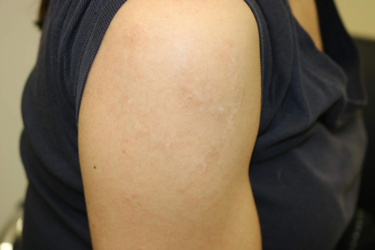 Tattooentfernung am Oberarm nach der 12. Behandlung