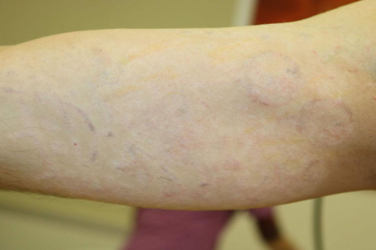 Tattooentfernung am Oberarm nach über 30 Behandlungen