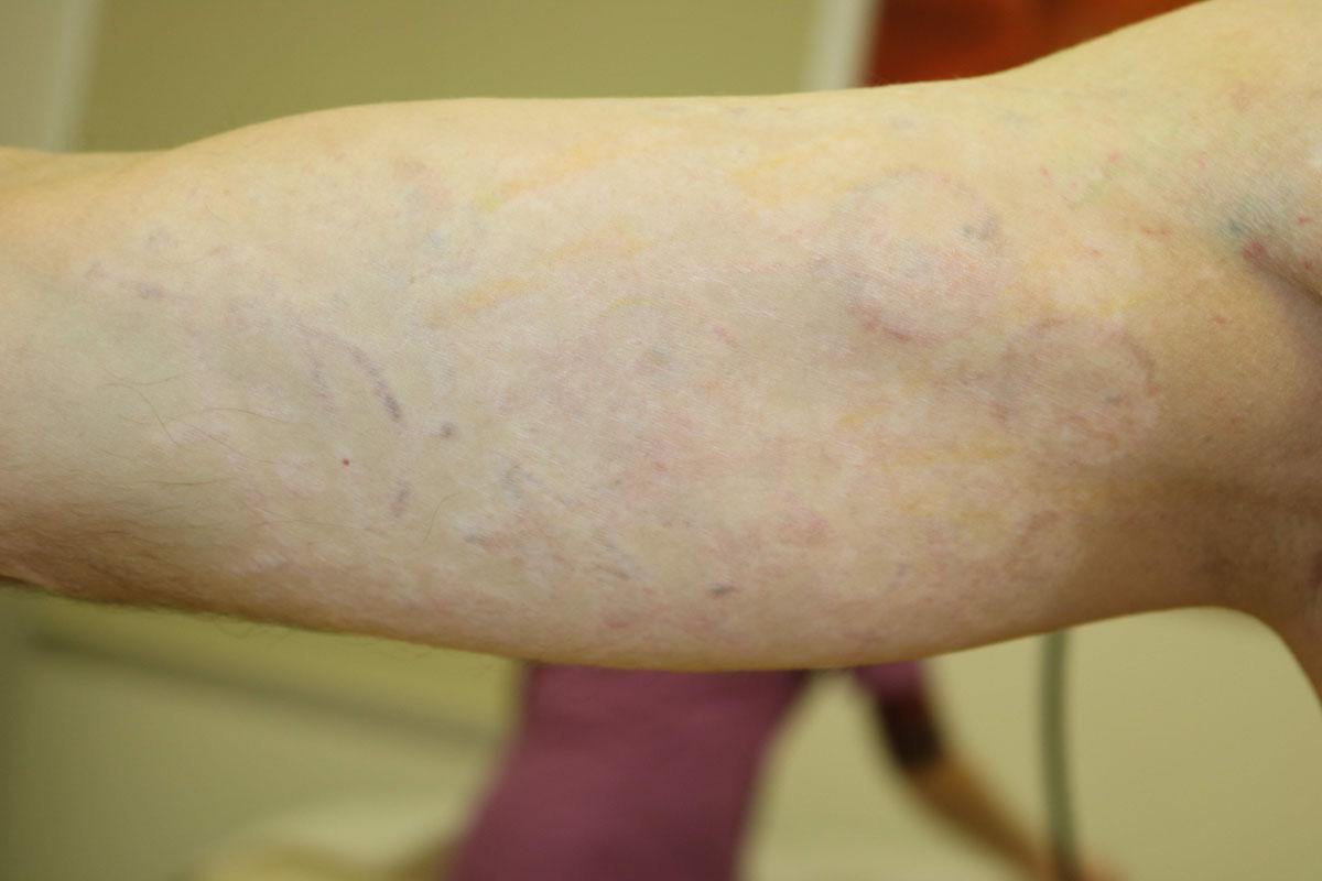 Tattooentfernung eines Oberarm Tattoos nach über 30 Behandlungen