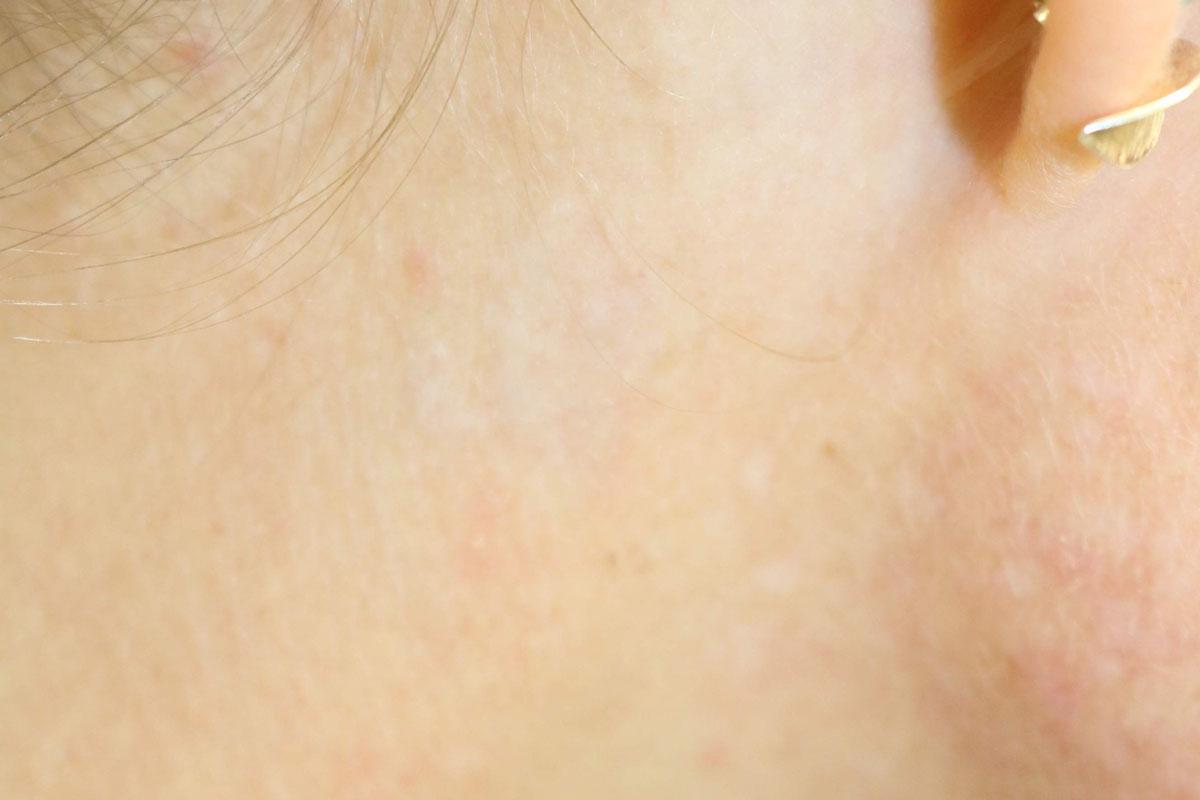 Tattooentfernung hinter dem Ohr nach der 6. Behandlung