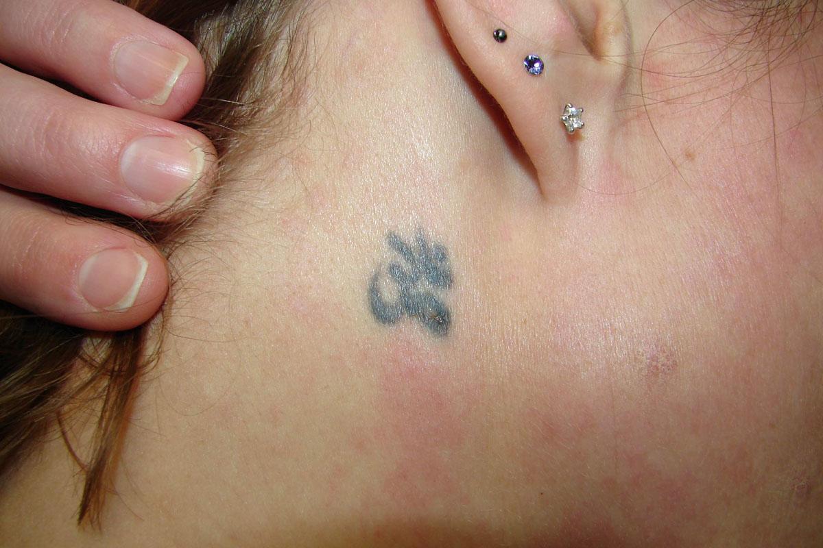 Tattooentfernung hinter dem Ohr vor der Behandlung