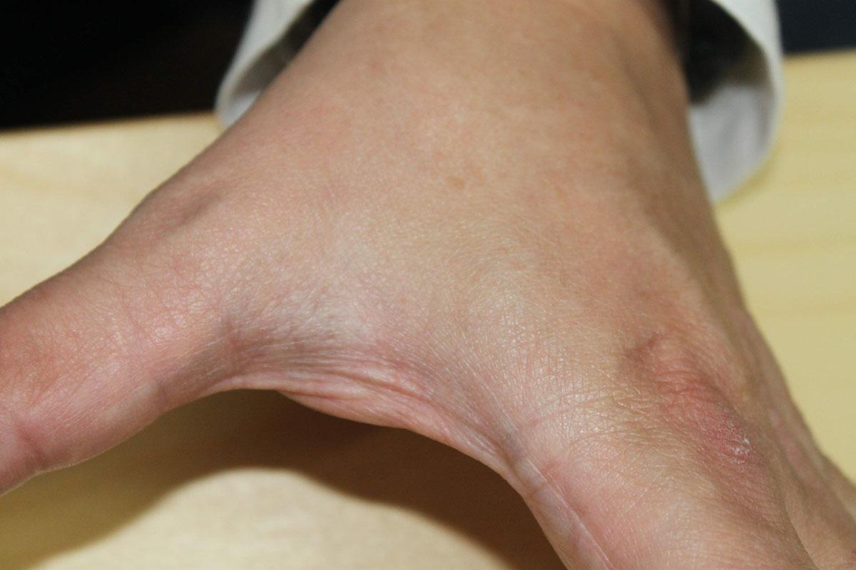 Tattooentfernung auf der Hand nach 3 Behandlungen