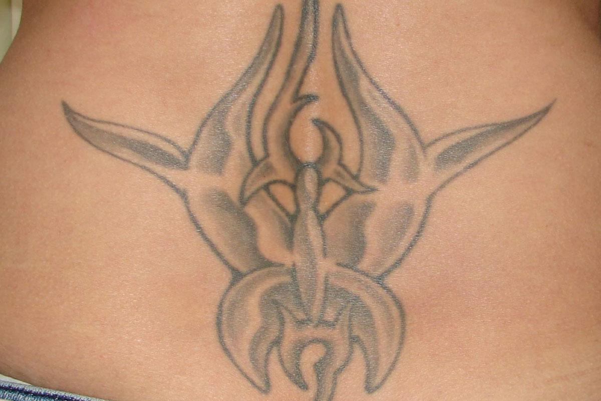 Tattooentfernung am Rücken vor der Behandlung