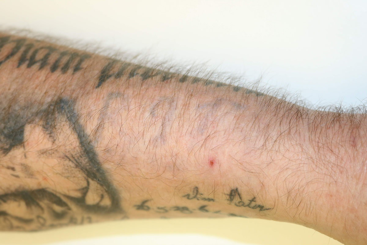 Tattooentfernung am Unterarm nach 15 Behandlungen