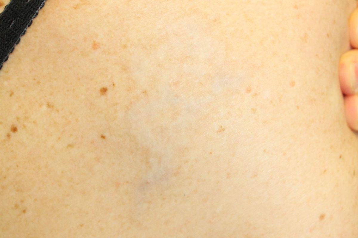 Tattooentfernung auf der Schulter nach der 7. Behandlung
