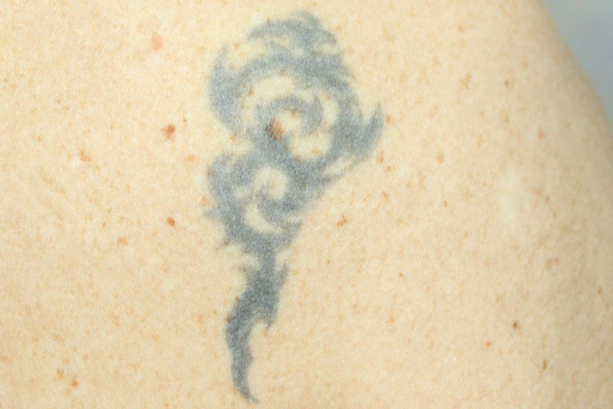 Tattooentfernung auf der Schulter vor der Behandlung