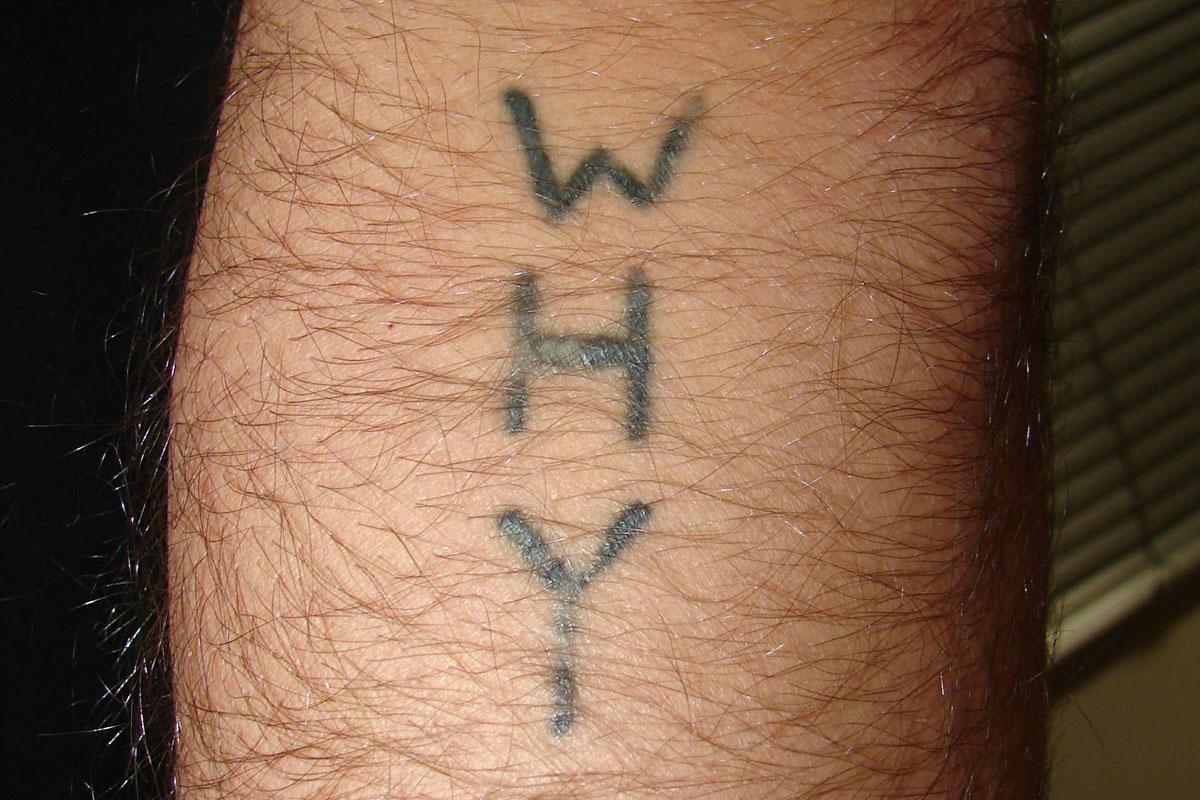 Tattooentfernung einer Tätowierung am Unterarm vor der Behandlung