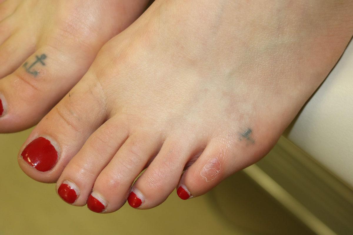 Tattooentfernung auf Zehen nach 4 Behandlungen