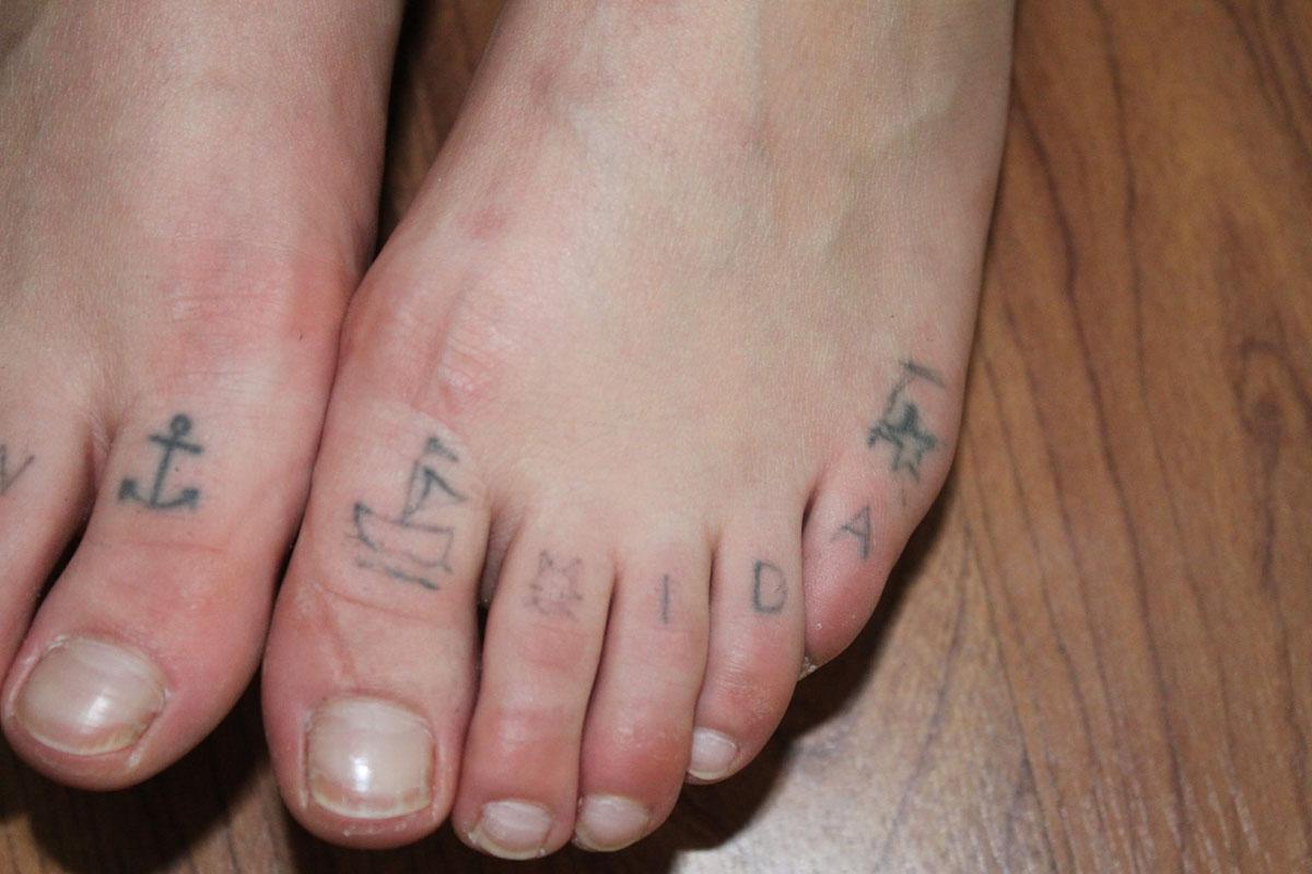 Tattooentfernung auf Zehen vor der Behandlung